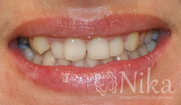 Therapy with veneers Zadar