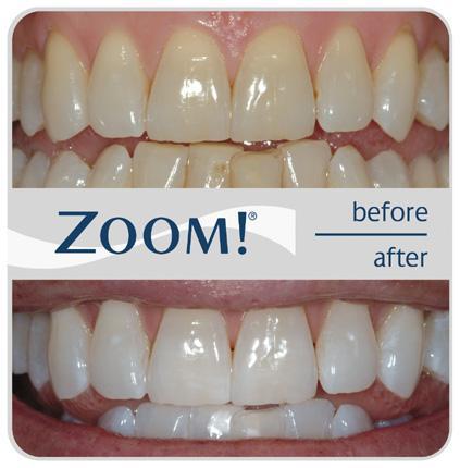 Tooth whitening Zadar